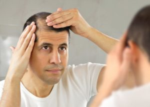 man-looking-at-his-hair-thinning-and-loss-in-a-mirror